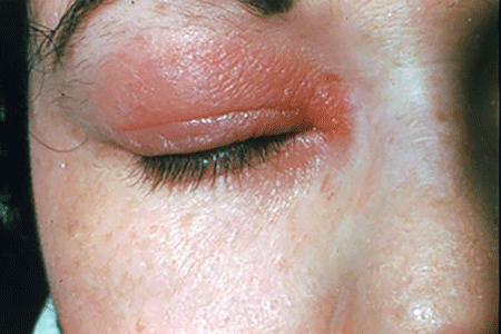 There are more than 15,000 allergens that can cause allergic contact dermatitis, and skin care products are a common cause. (Photo: American Academy of Dermatology National Library of Dermatologic Teaching Slides)